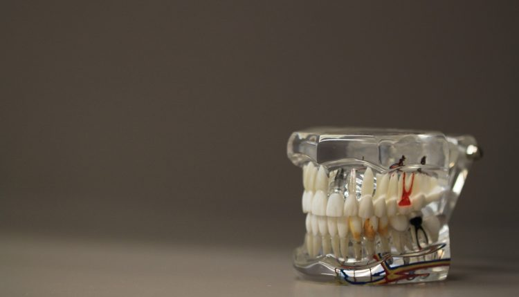 dentistry-668191_1920(2)