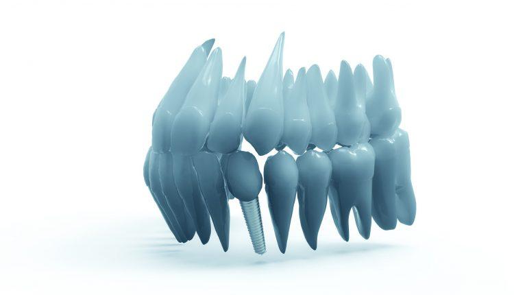 teeth-2833417_1920(11)