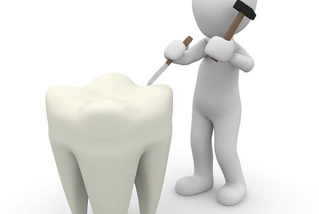 proteza-dentara