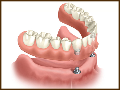 proteze-dentare-in-sector-2